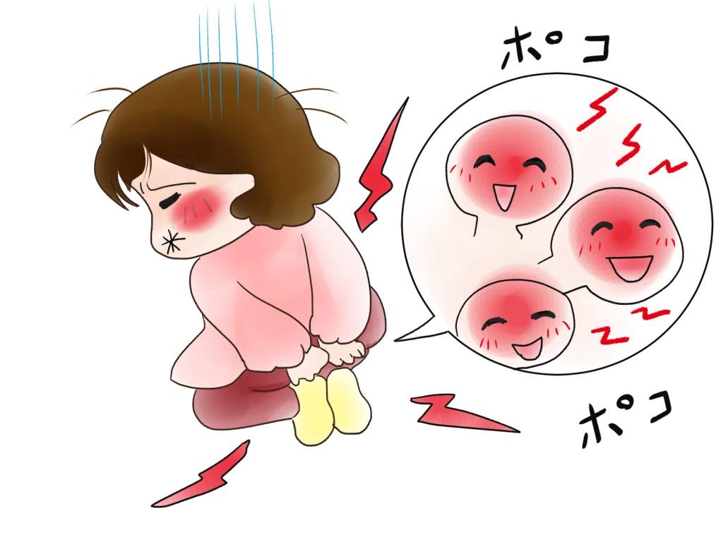 誰にも言えない痔の悩みを解消!手術しないでも改善出来ます。