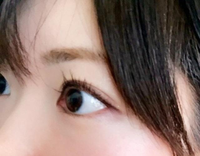 目の異常を感じたら、緑内障を疑うべき?!早めの対策で緑内障を改善させる方法とは