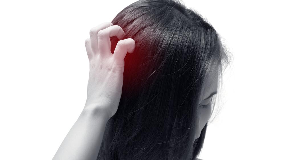 頭皮のフケを解消する天然成分とは?シャンプーを変えるとフケは治る