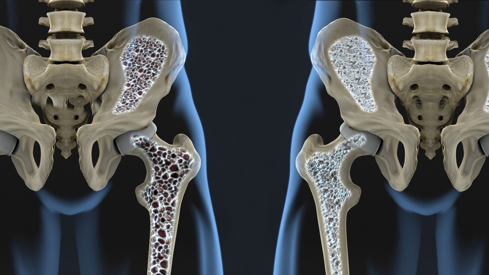 女性の骨粗鬆症対策に!「カルシウムキャラメルEX」画像の左が「骨粗鬆症」で右が「正常な骨」です。