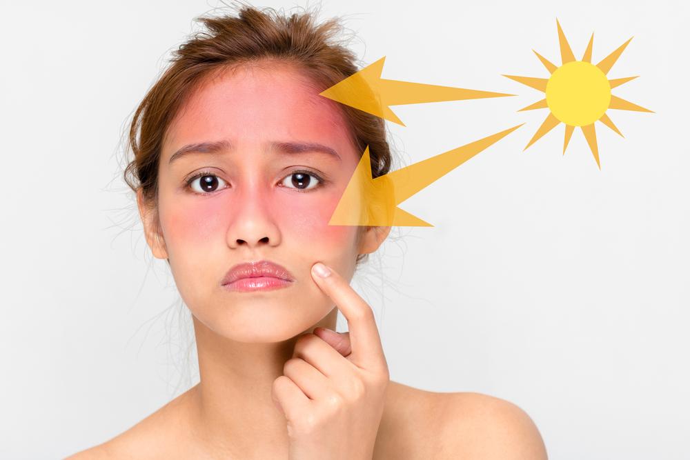 日焼け止めが塗れない頭や目にもしっかりUVケア「ドクターズチョイス UVケアサプリメント」!口コミも紹介