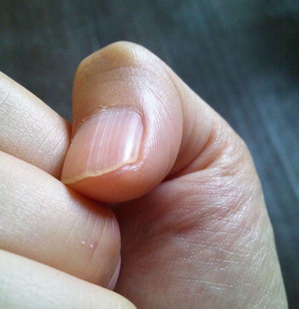 親指だけに縦線が多い場合は腎機能に注意!